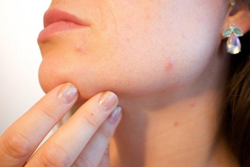 Tips agar masker tak sebabkan jerawat pada kulit sensitif